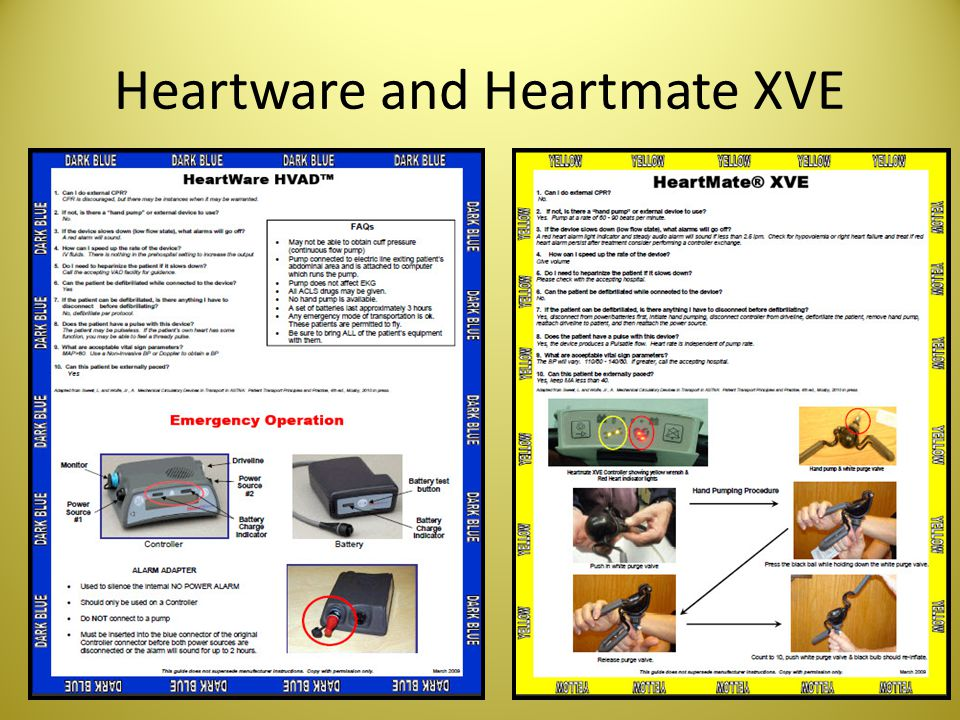 Heartware and Heartmate XVE