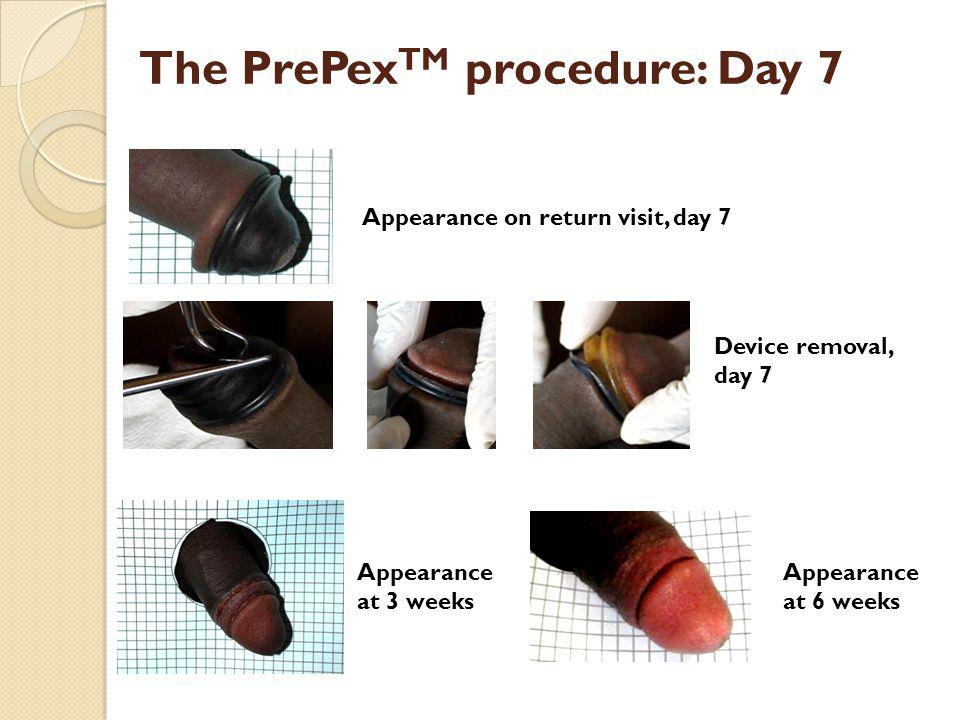 The PrePexTM procedure: Day 7