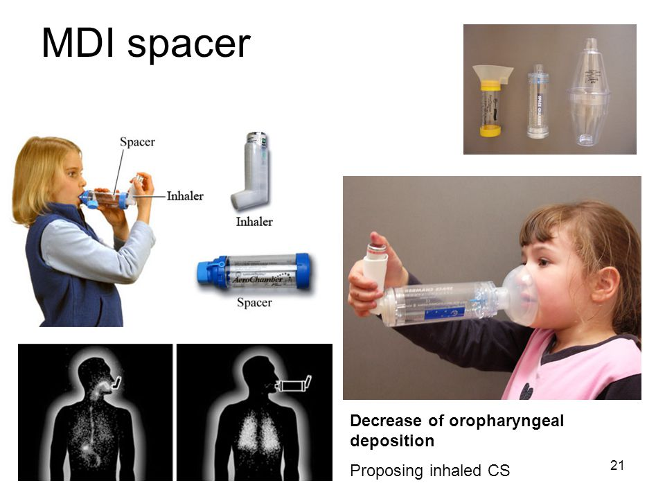 MDI spacer Decrease of oropharyngeal deposition Proposing inhaled CS
