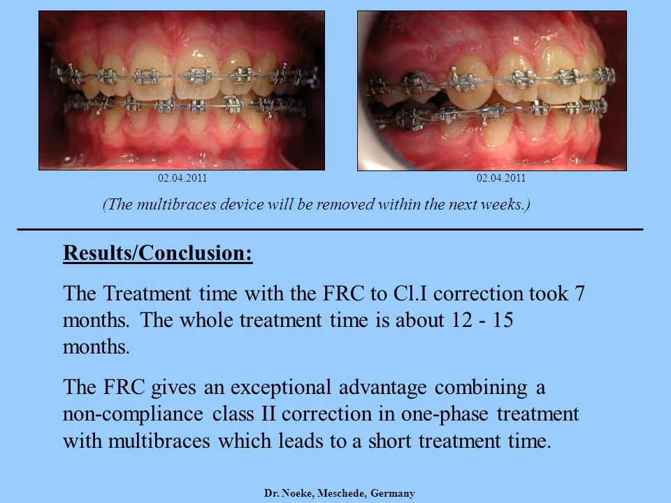 02.04.2011 02.04.2011. (The multibraces device will be removed within the next weeks.) Results/Conclusion: