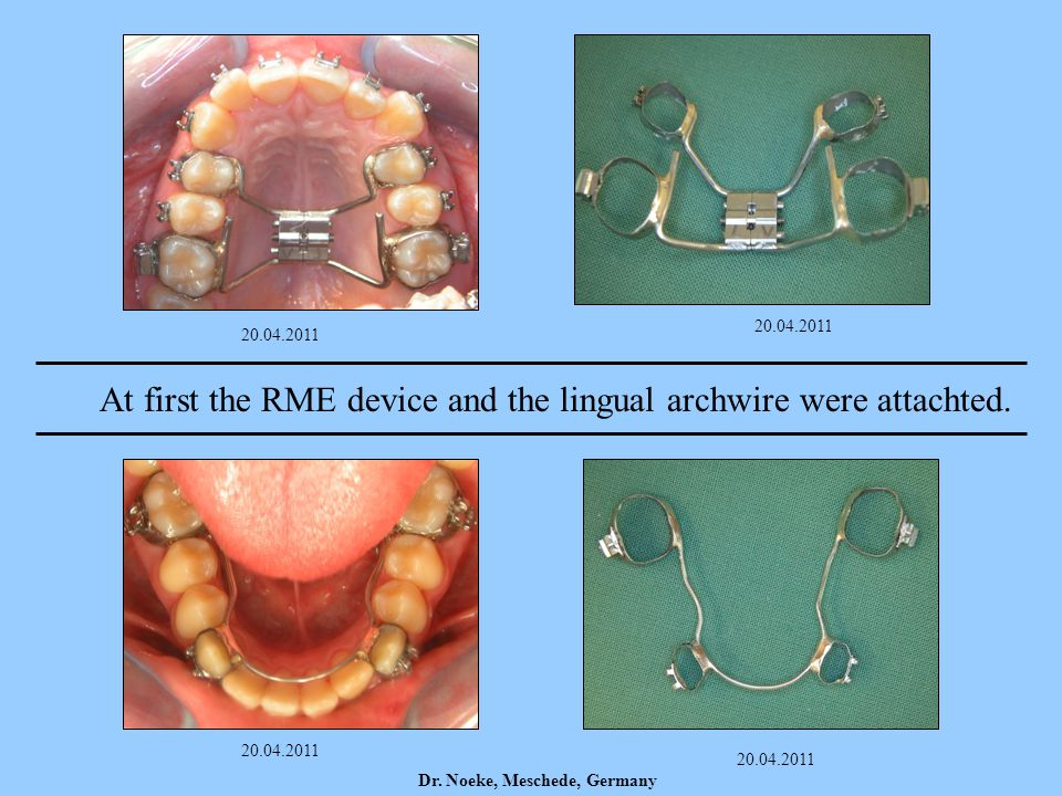 At first the RME device and the lingual archwire were attachted.
