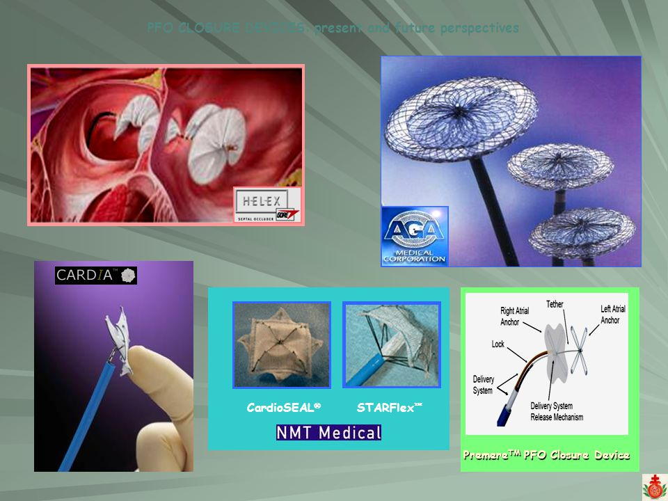 PFO CLOSURE DEVICES: present and future perspectives