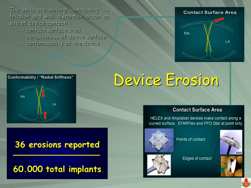 Device Erosion 36 erosions reported 60.000 total implants