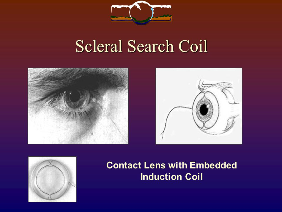 Contact Lens with Embedded Induction Coil