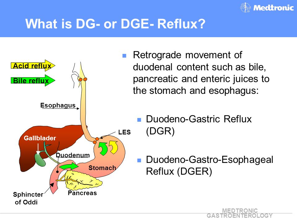 What is DG- or DGE- Reflux
