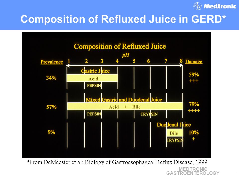 Composition of Refluxed Juice in GERD*