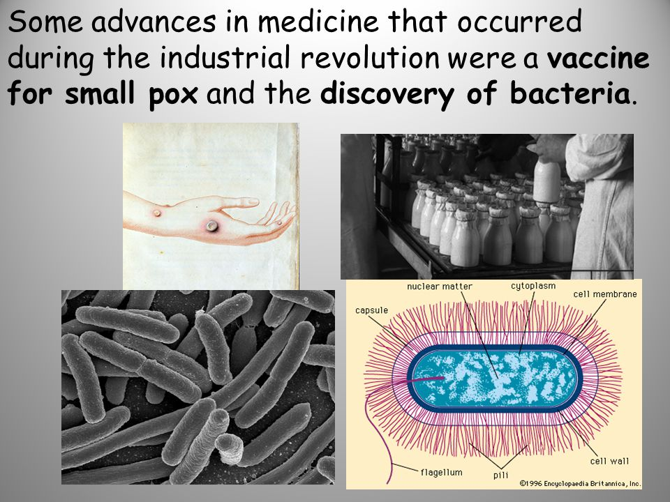 Some advances in medicine that occurred during the industrial revolution were a vaccine for small pox and the discovery of bacteria.