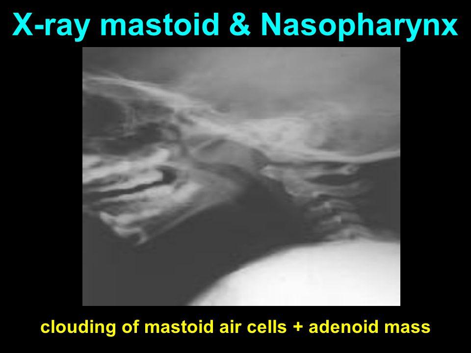 X-ray mastoid & Nasopharynx