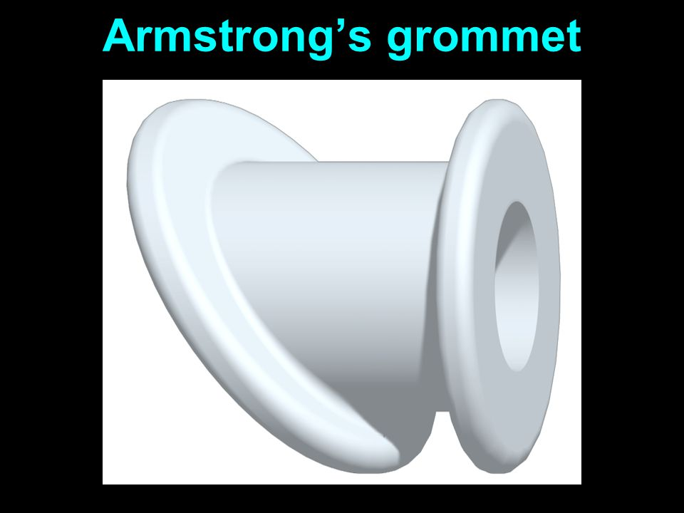 Armstrong's grommet