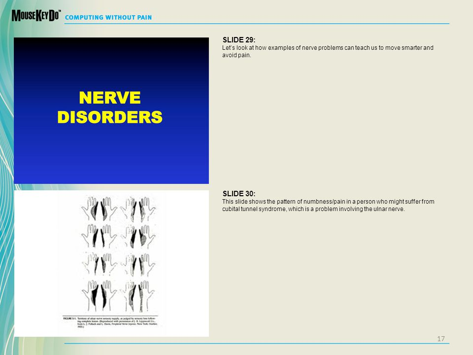 SLIDE 29: Let's look at how examples of nerve problems can teach us to move smarter and avoid pain.