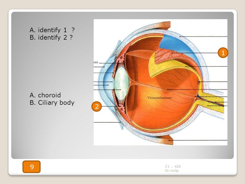A. identify 1 B. identify 2 1 A. choroid B. Ciliary body 2 9