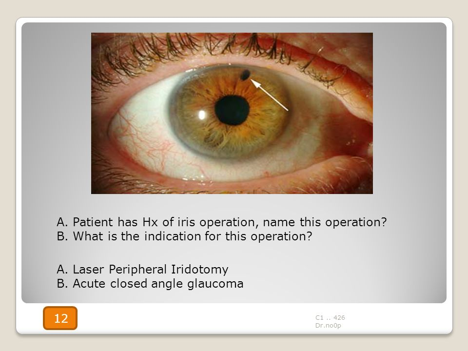 A. Patient has Hx of iris operation, name this operation