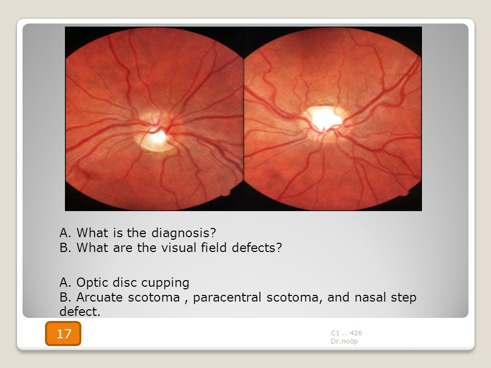 B. What are the visual field defects