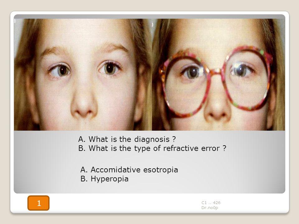 B. What is the type of refractive error