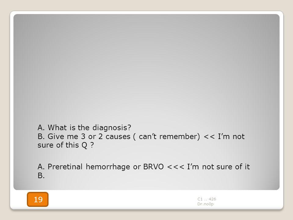 A. Preretinal hemorrhage or BRVO <<< I'm not sure of it B.