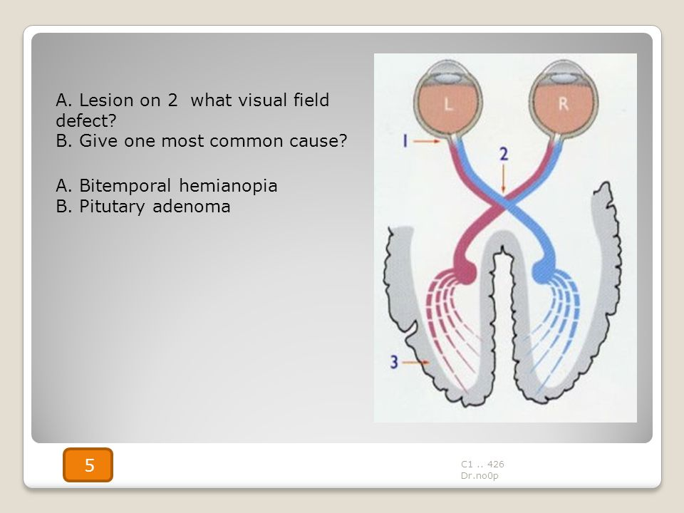 A. Lesion on 2 what visual field defect