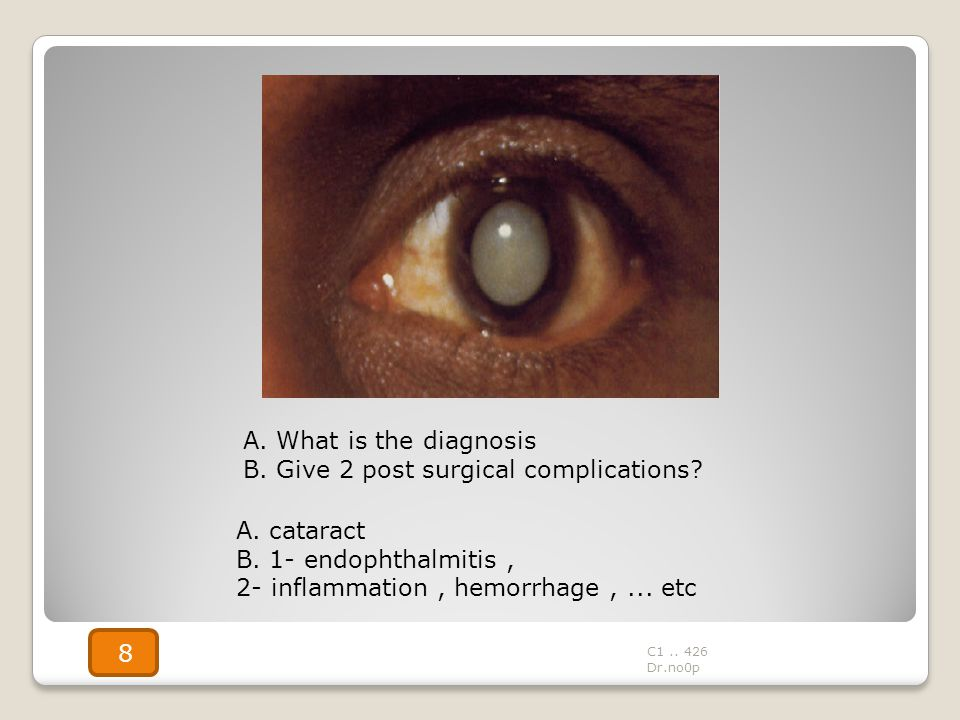 B. Give 2 post surgical complications