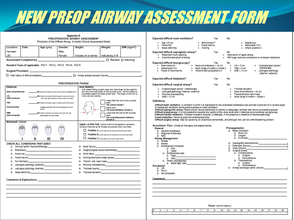 NEW PREOP AIRWAY ASSESSMENT FORM