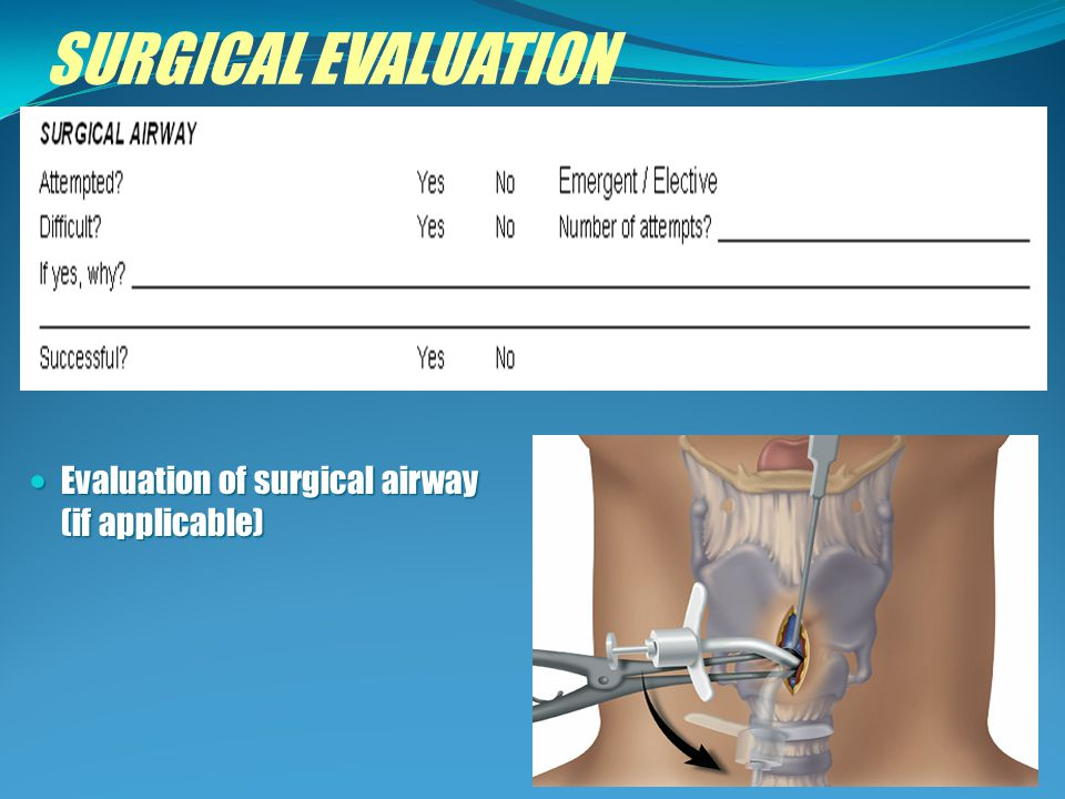 SURGICAL EVALUATION Evaluation of surgical airway (if applicable)
