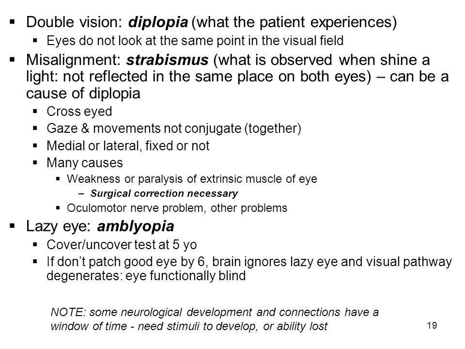 Double vision: diplopia (what the patient experiences)