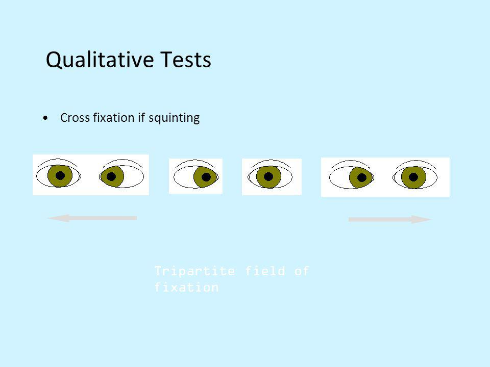 Qualitative Tests Cross fixation if squinting