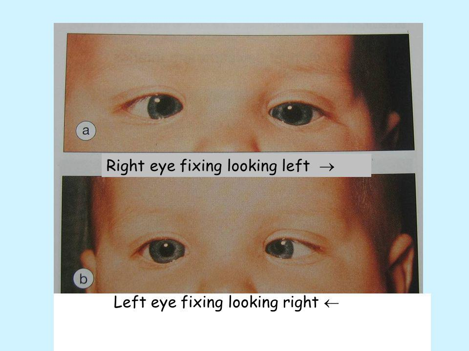 Right eye fixing looking left 