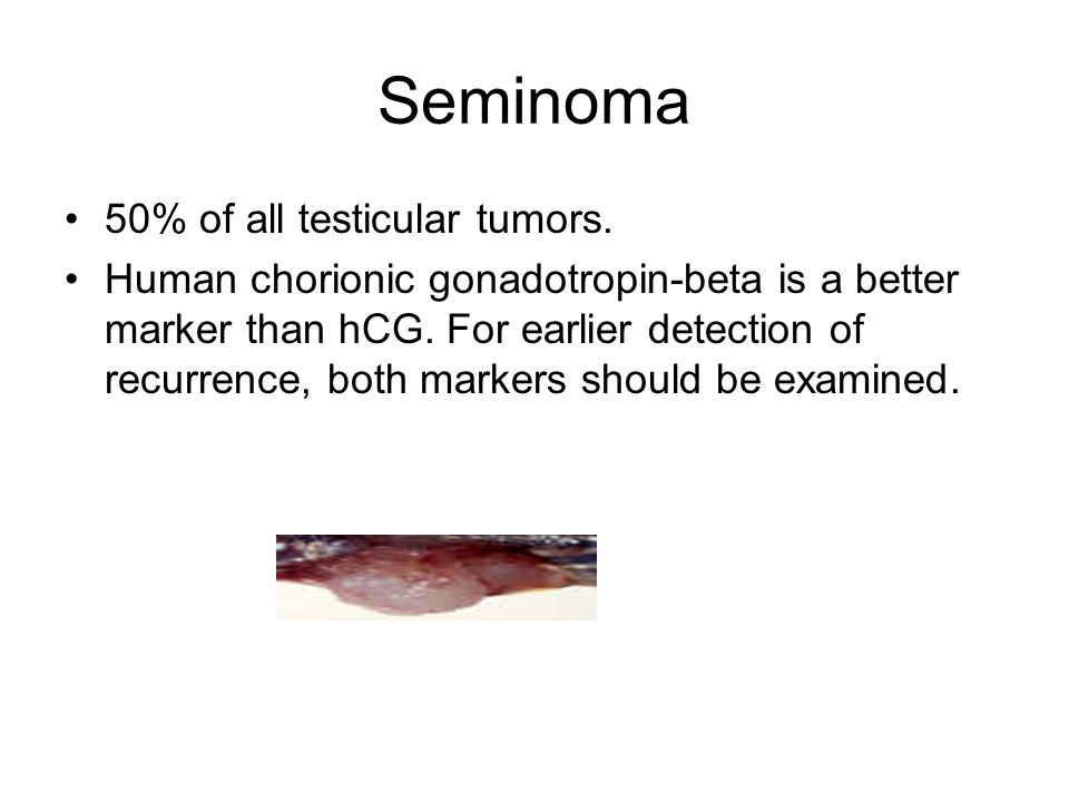 Seminoma 50% of all testicular tumors.