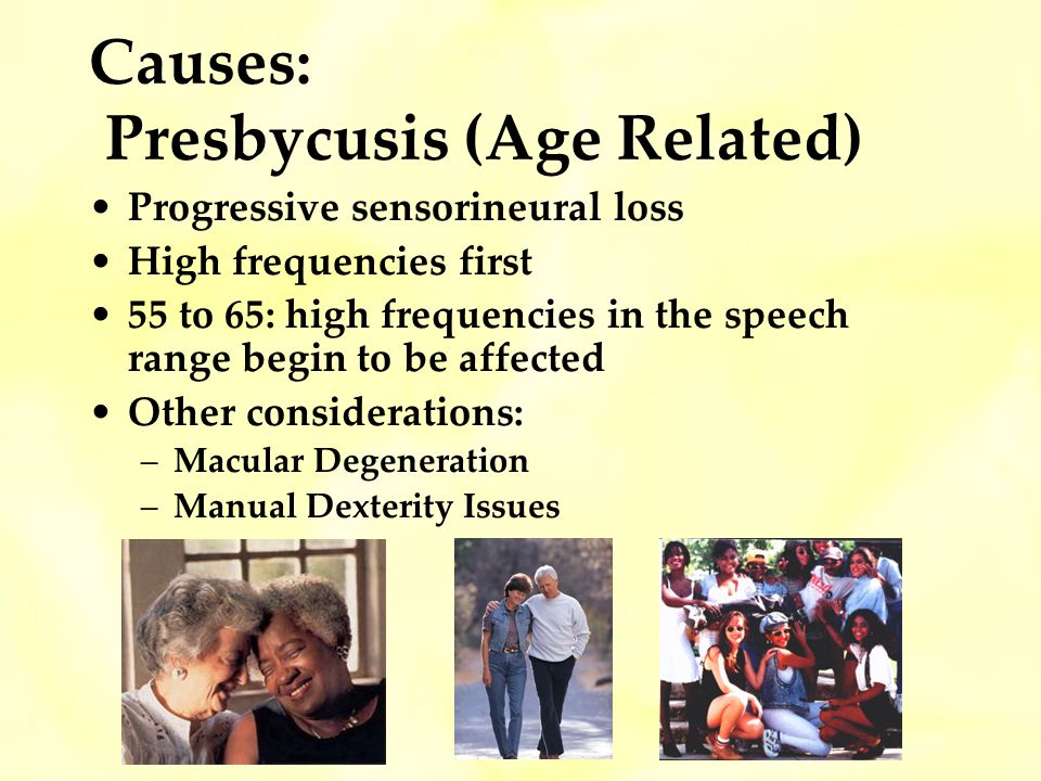 Causes: Presbycusis (Age Related)
