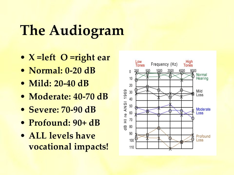 The Audiogram X =left O =right ear Normal: 0-20 dB Mild: 20-40 dB