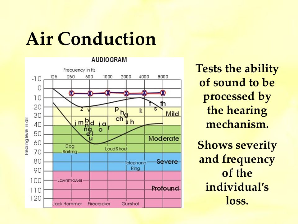 Air Conduction Tests the ability of sound to be processed by the hearing mechanism.