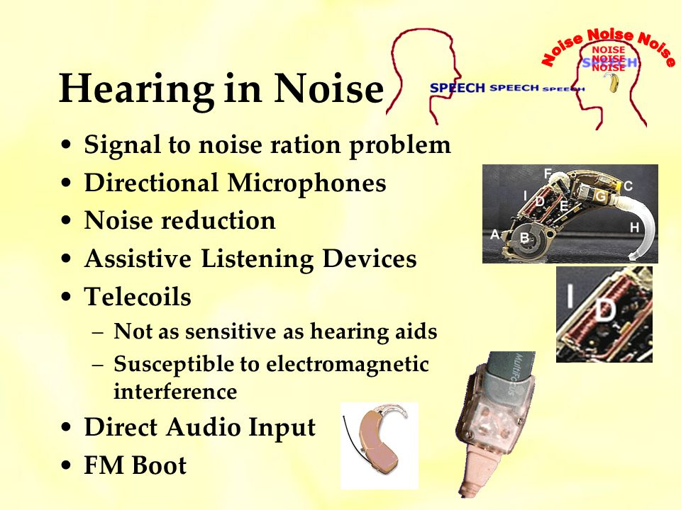 Hearing in Noise Signal to noise ration problem