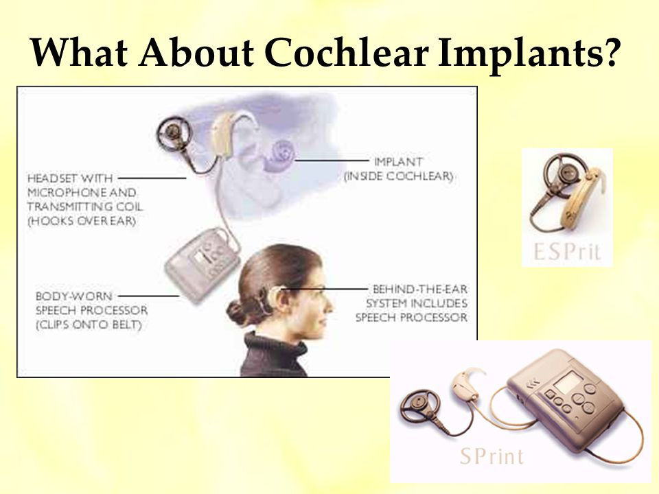 What About Cochlear Implants