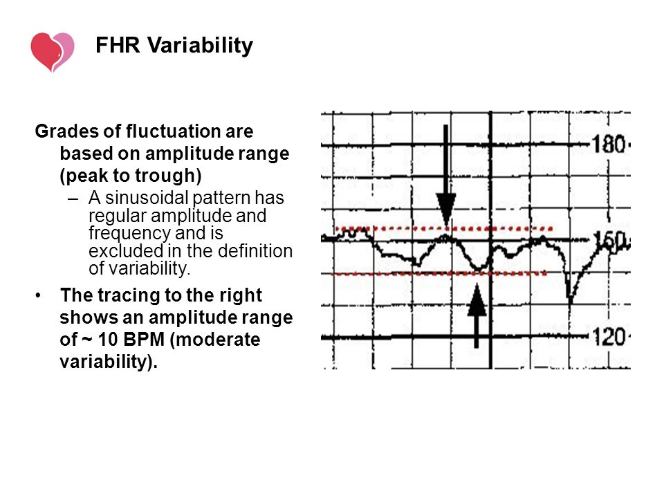 FHR Variability Grades of fluctuation are based on amplitude range (peak to trough)