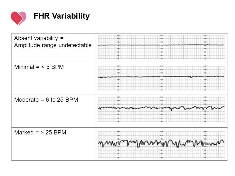 FHR Variability Absent variability = Amplitude range undetectable
