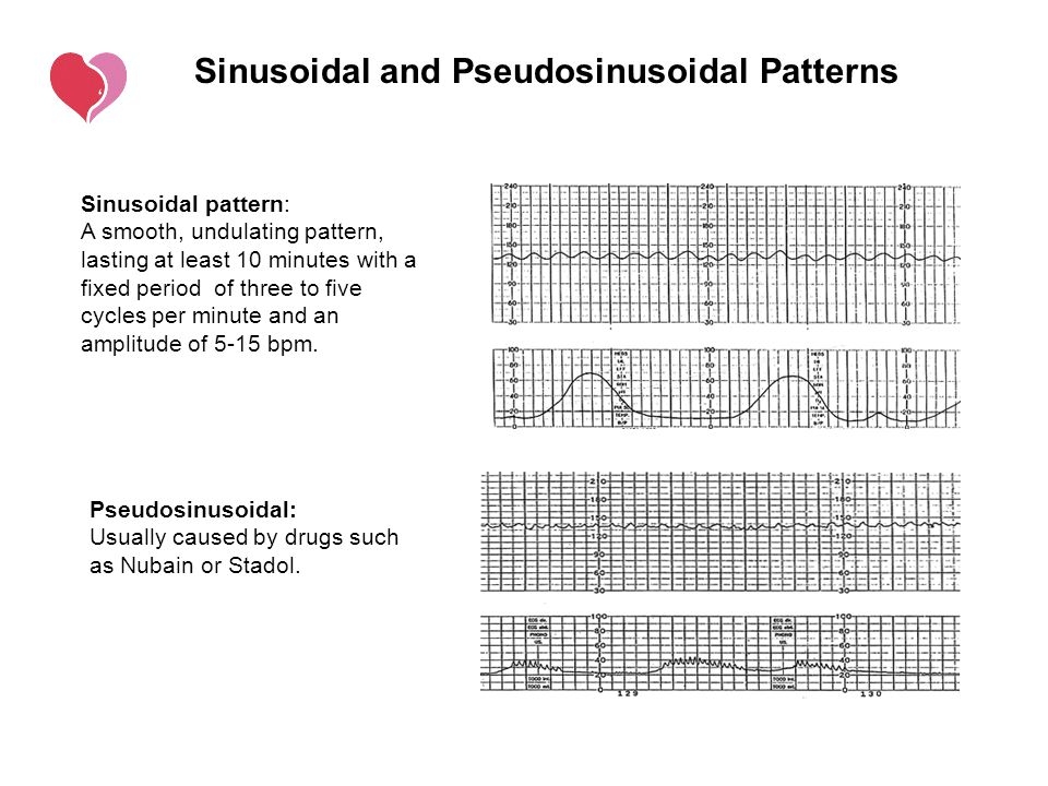 Sinusoidal and Pseudosinusoidal Patterns