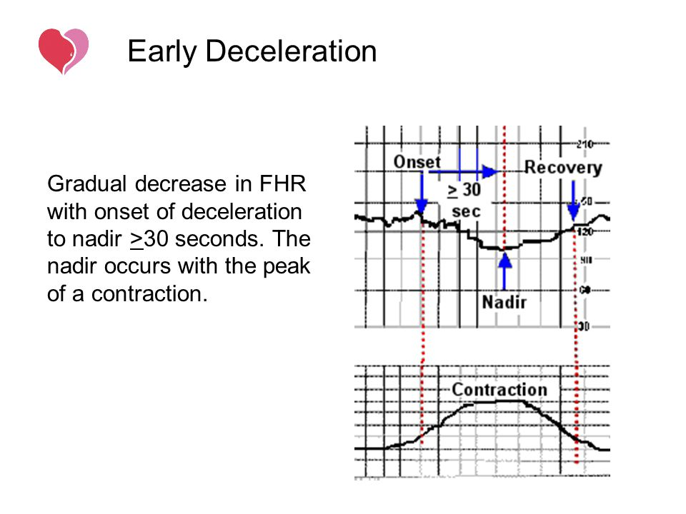 Early Deceleration Gradual decrease in FHR with onset of deceleration to nadir >30 seconds.