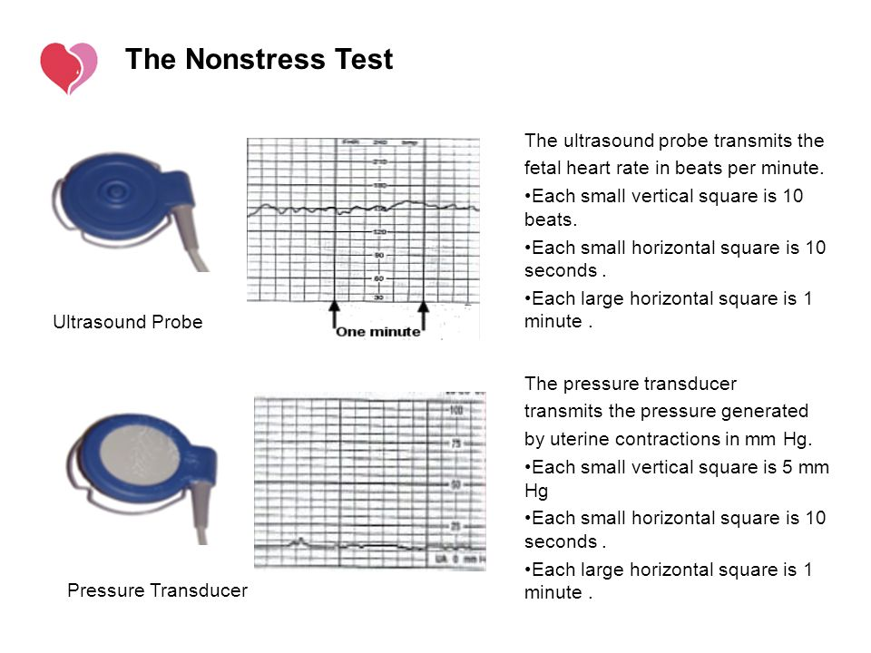 The Nonstress Test The ultrasound probe transmits the
