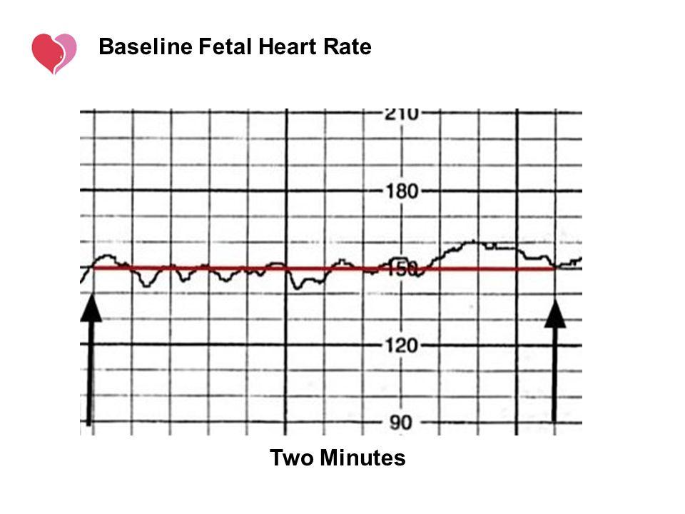 Baseline Fetal Heart Rate
