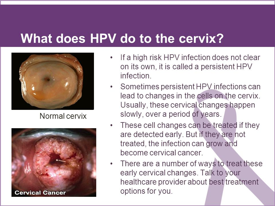 What does HPV do to the cervix