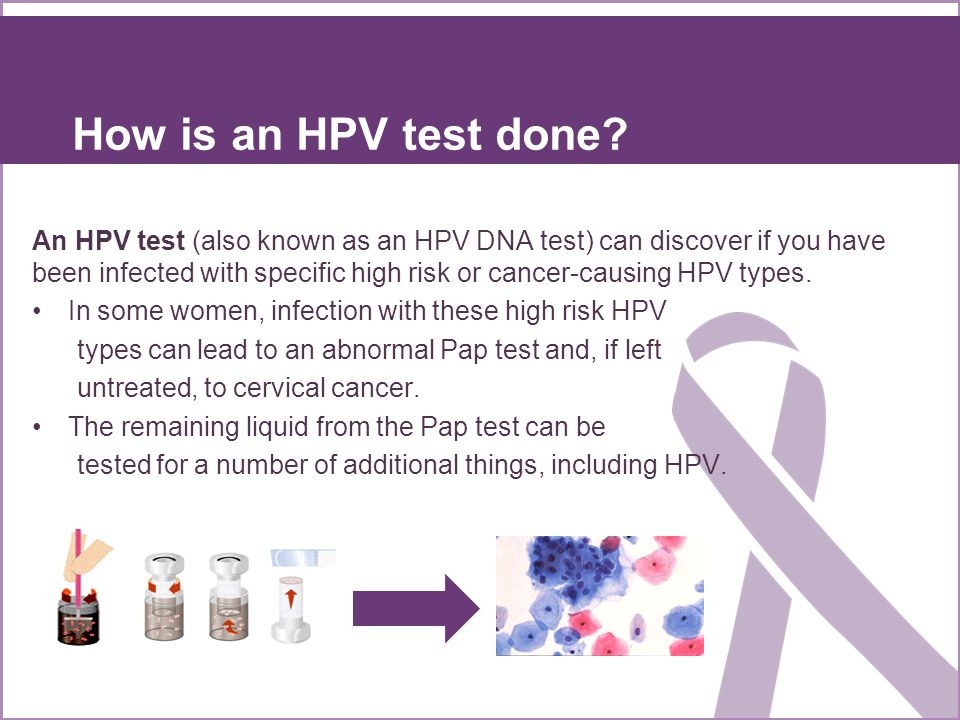 How is an HPV test done
