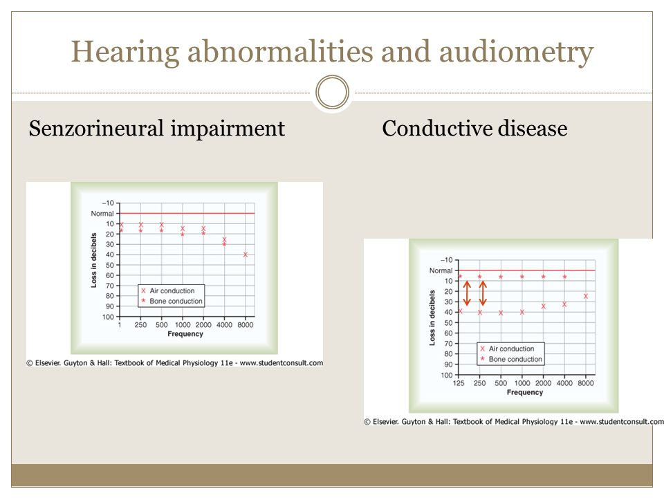 Hearing abnormalities and audiometry
