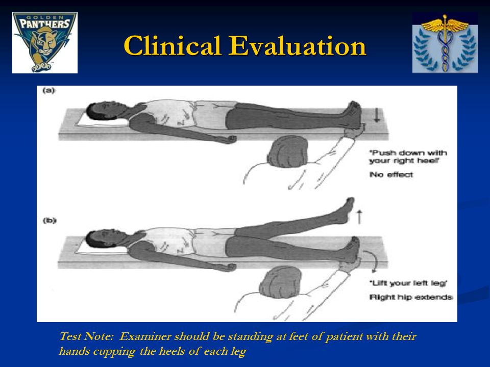 Clinical Evaluation Test Note: Examiner should be standing at feet of patient with their hands cupping the heels of each leg.