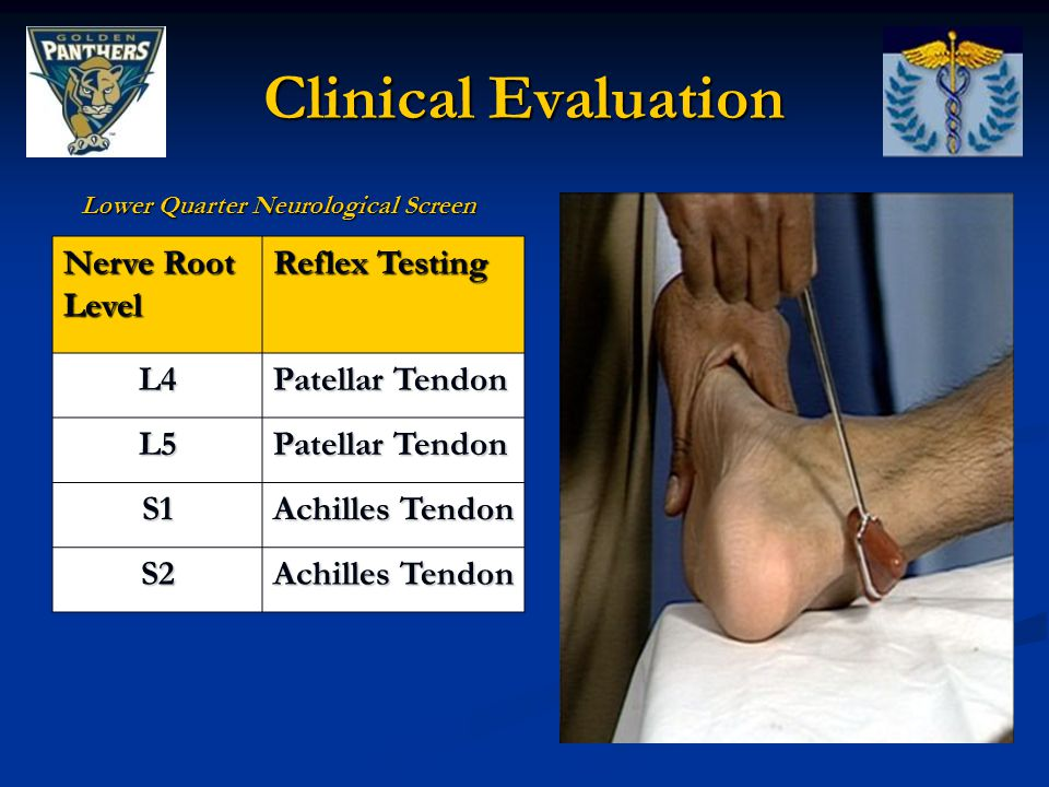Clinical Evaluation Nerve Root Level Reflex Testing L4 Patellar Tendon