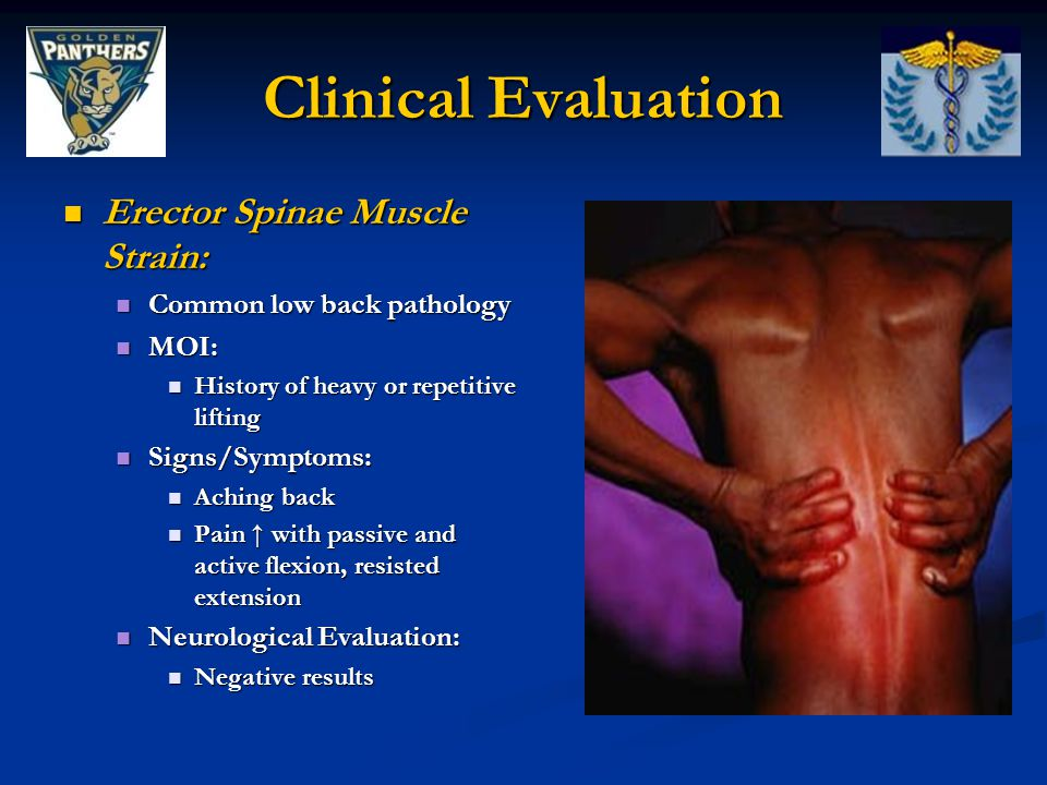 Clinical Evaluation Erector Spinae Muscle Strain:
