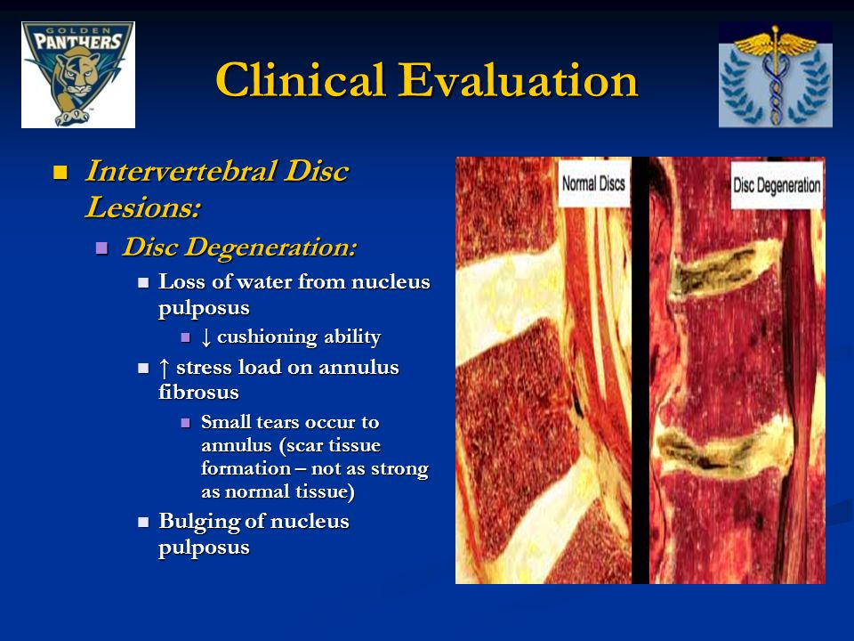 Clinical Evaluation Intervertebral Disc Lesions: Disc Degeneration: