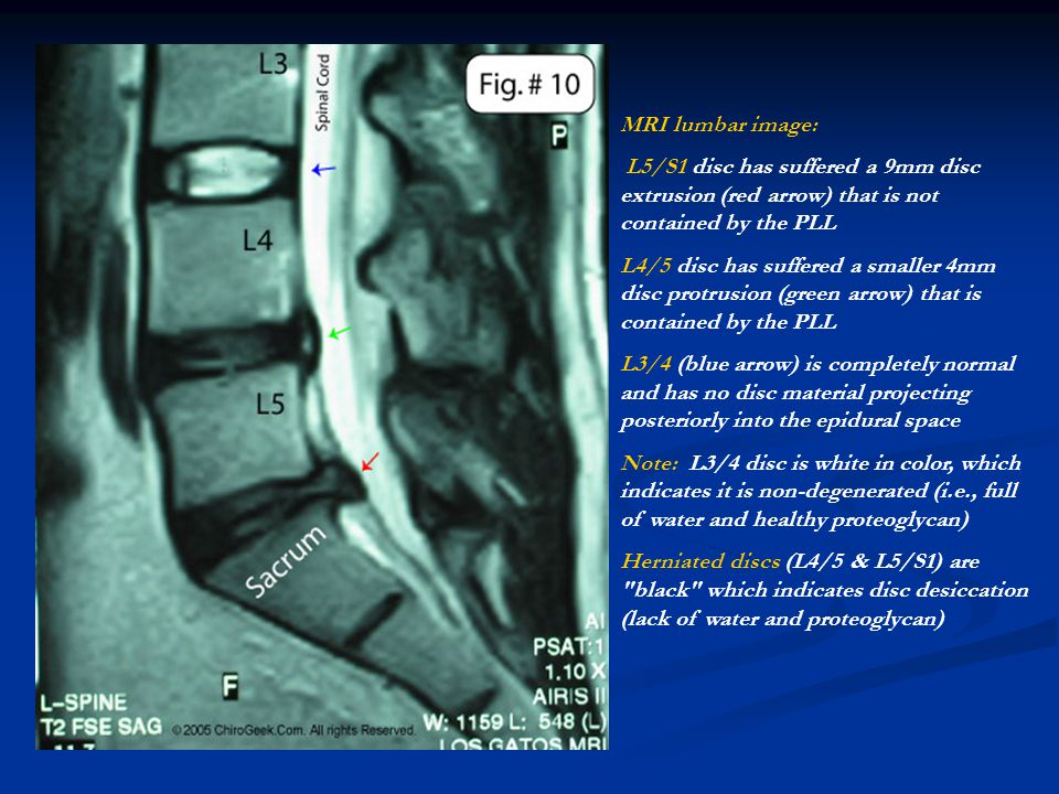 MRI lumbar image: L5/S1 disc has suffered a 9mm disc extrusion (red arrow) that is not contained by the PLL.