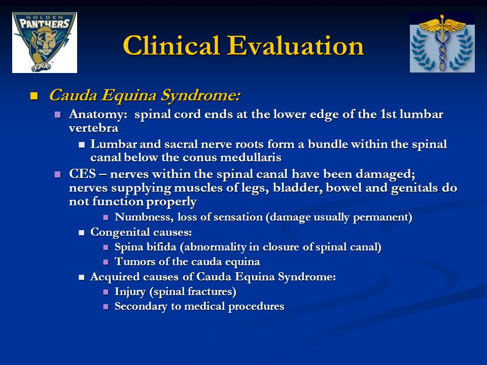 Clinical Evaluation Cauda Equina Syndrome: