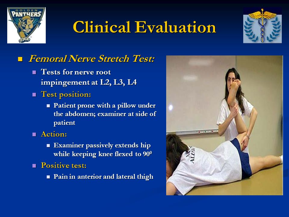 Clinical Evaluation Femoral Nerve Stretch Test: