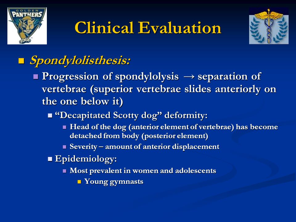 Clinical Evaluation Spondylolisthesis: