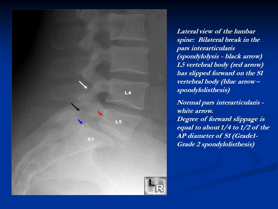 Lateral view of the lumbar spine: Bilateral break in the pars interarticularis (spondylolysis - black arrow) L5 vertebral body (red arrow) has slipped forward on the S1 vertebral body (blue arrow – spondylolisthesis)